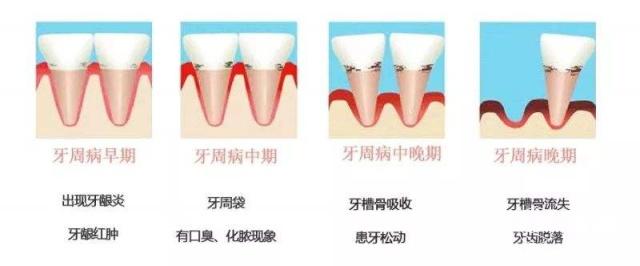 牙周炎的克星,你的牙周炎有救了